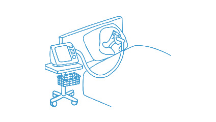 HMV(在宅人工呼吸療法)